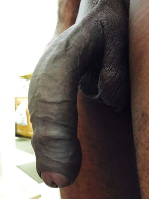 big black uncut cock